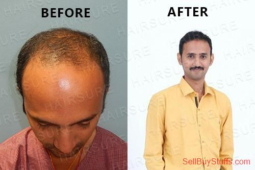 HYDERABAD-TELANGANA HairSure: Best Hair Transplant Clinic in Hyderabad