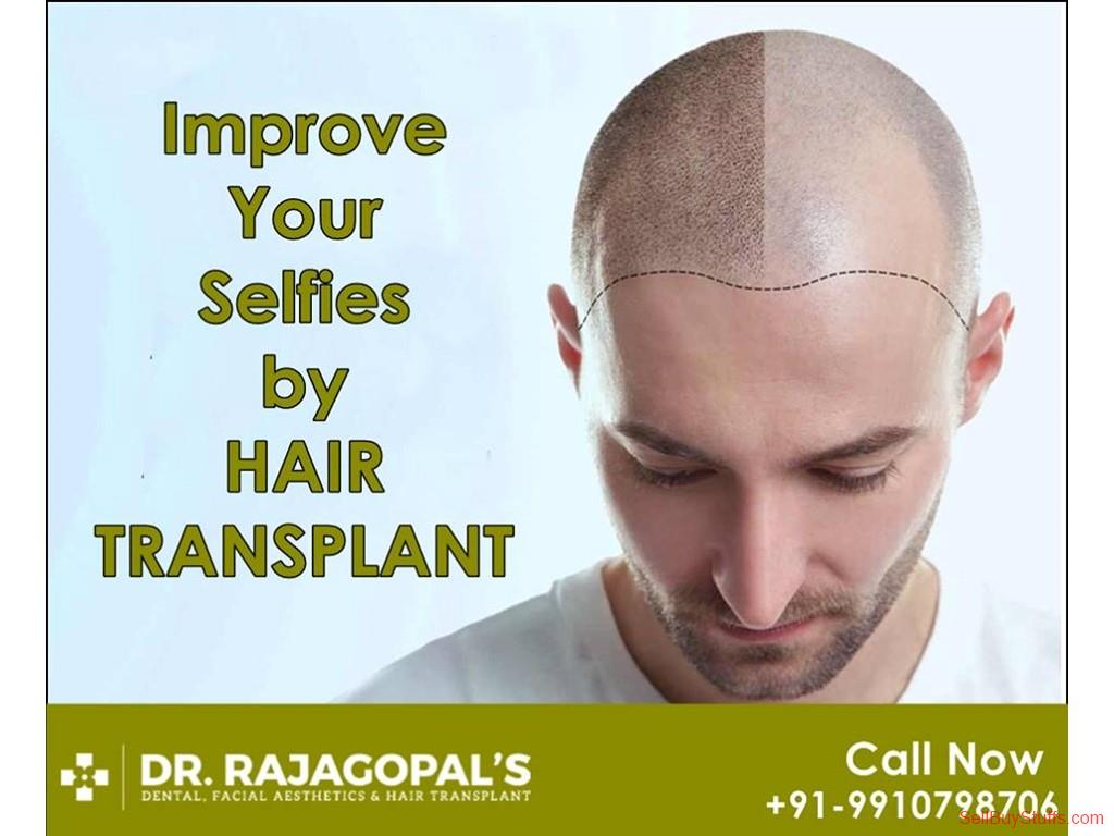 second hand/new: Hair Transplant in Gurgoan | FUE And FUT  Transplant Technique.